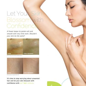 Xeo-Hair-Removal