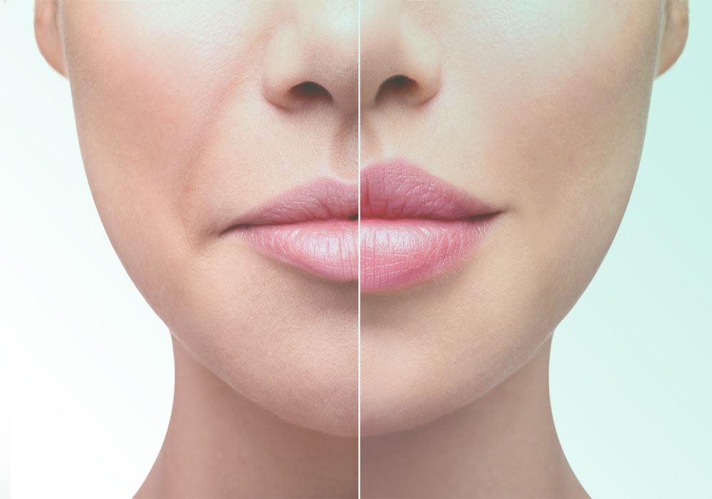 lip fillers in Toowoomba