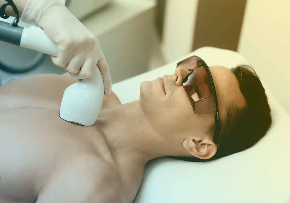 laser hair removal Toowoomba